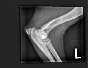 X-rays Showing The Damage to Alfie's Humerus
